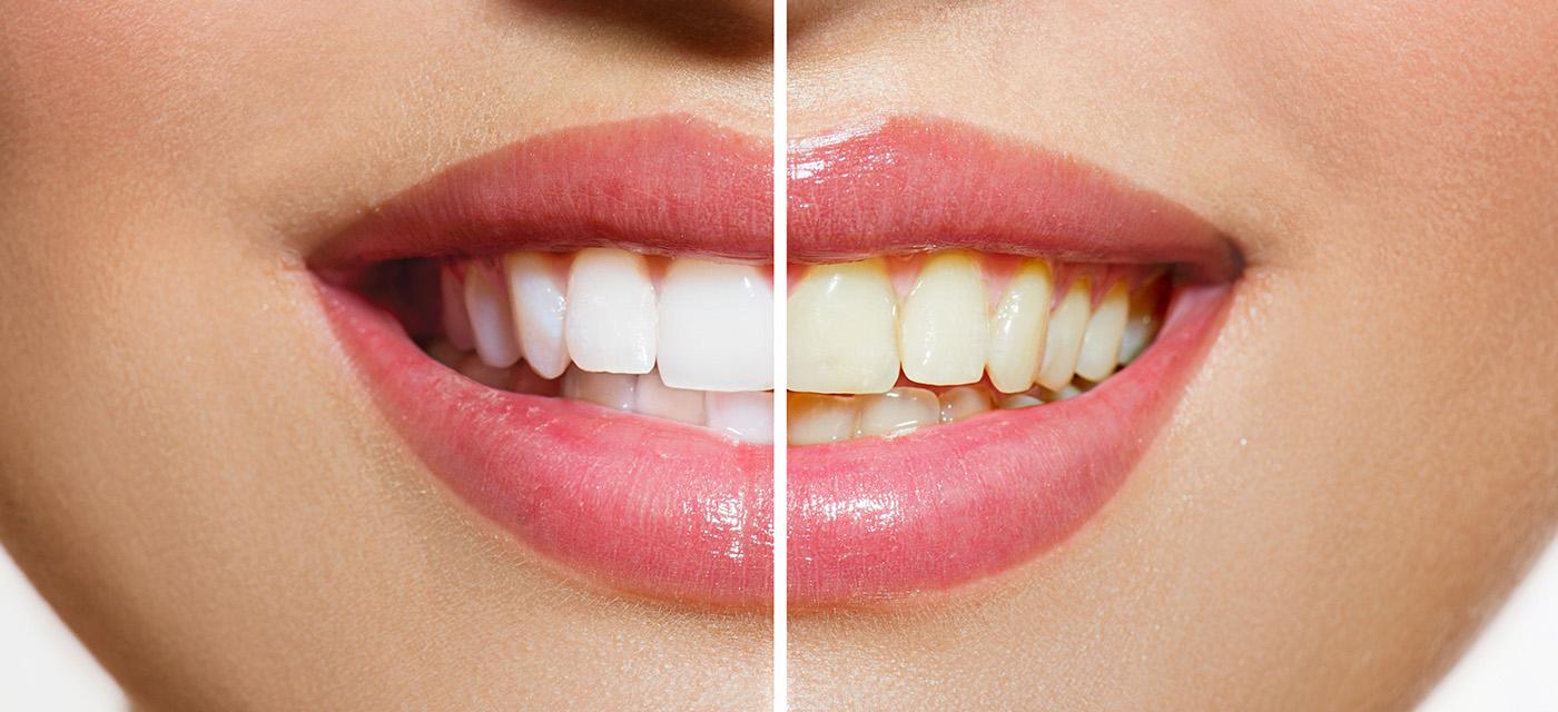 Antes y después de un blanqueamiento dental