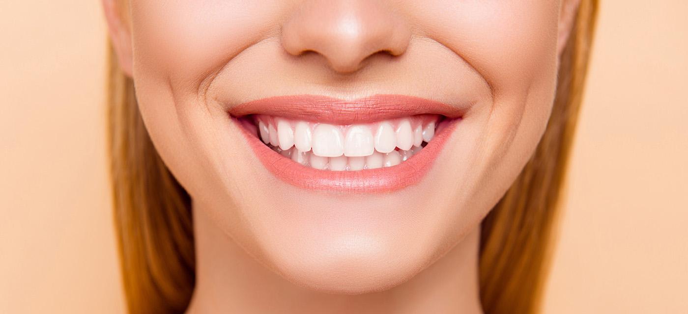 Mujer enseñando su sonrisa dental