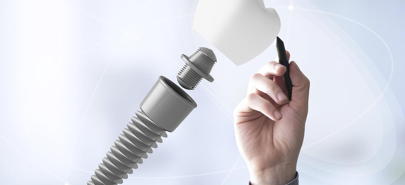 Consultorio odontológico Dentix para procesos dentales como la Endodoncia