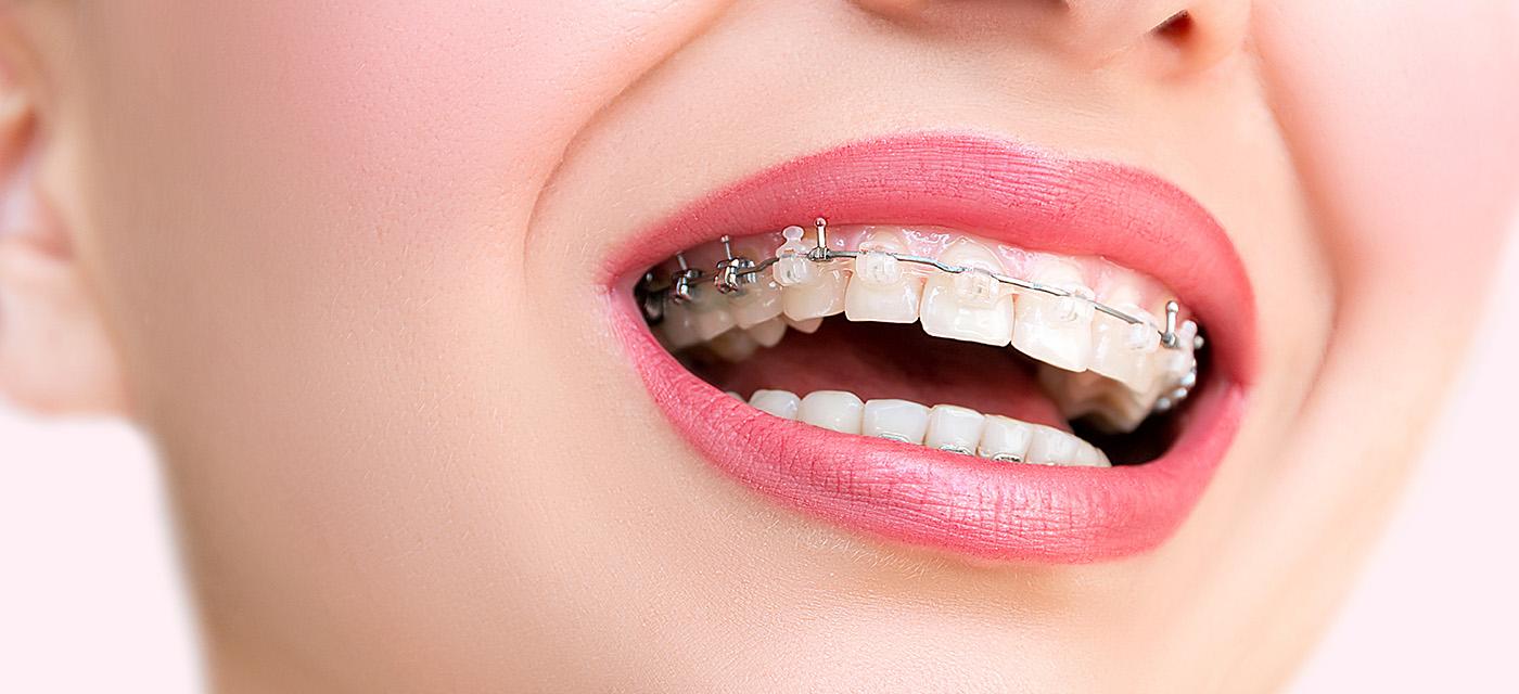 sonrisa de mujer con ortodoncia invisible