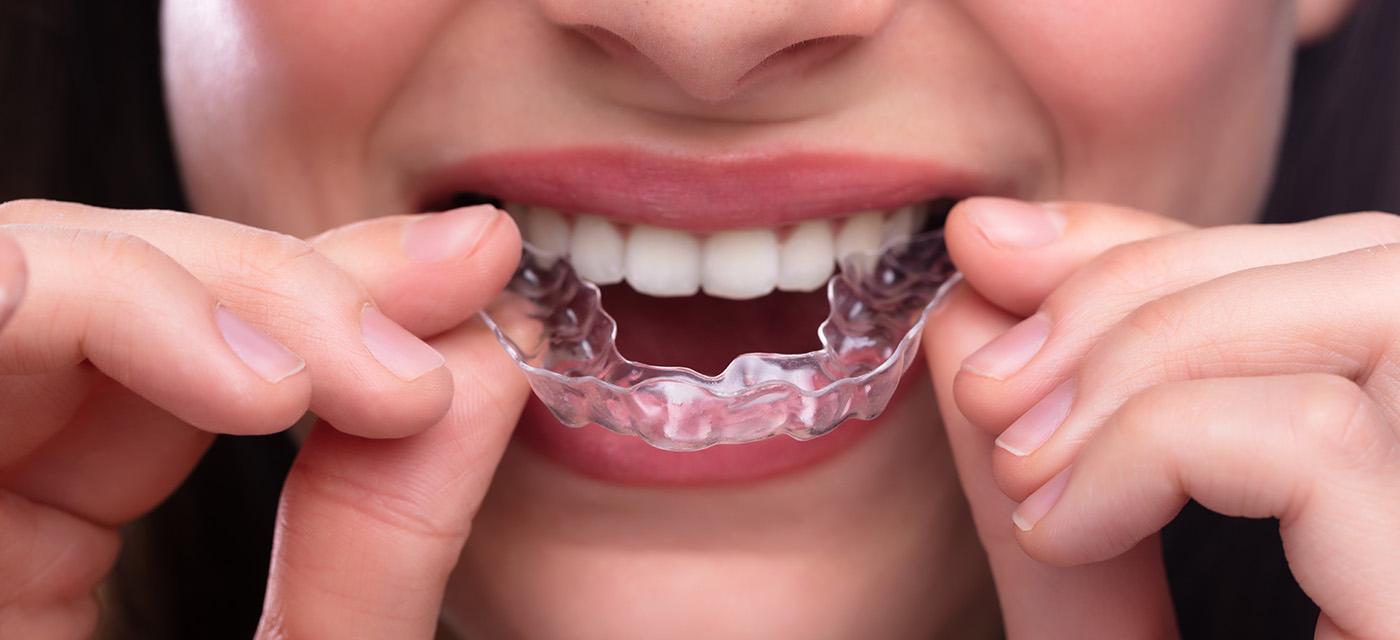 Paciente luce su sonrisa con ortodoncia invisible