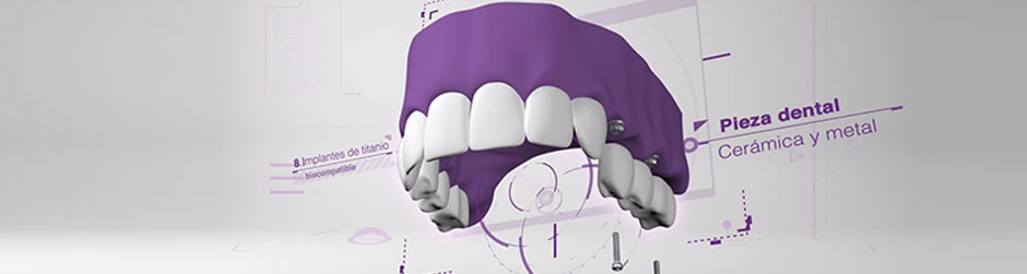 Vídeo prótesis dental