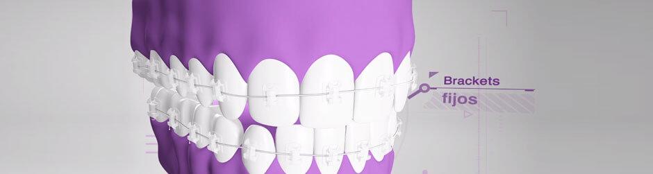 Vídeo ortodoncia