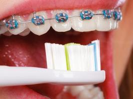 cepillado-de-dientes-con-ortodoncia