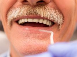 hombre con implantes dentales