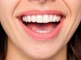 mujer con blanqueamiento dental