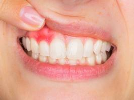 mujer con gingivitis
