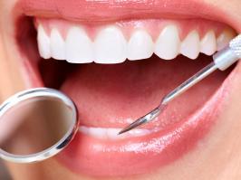 Mujer con procedimiento de gingivectomía
