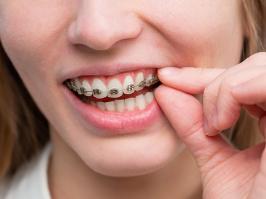Mujer sonriendo con contorneado dental