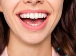 mujer tratada por periodontitis