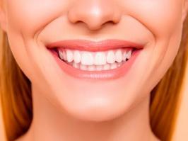 paciente con blanqueamiento dental