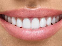 resinas y amalgamas dentales