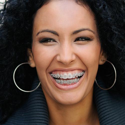 mujer morena con ortodoncia tradicional sonriendo